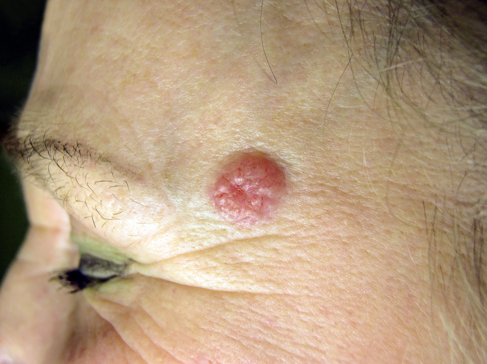 Skin cancer BBC