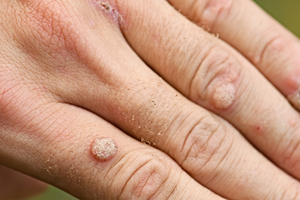 Warts in hand