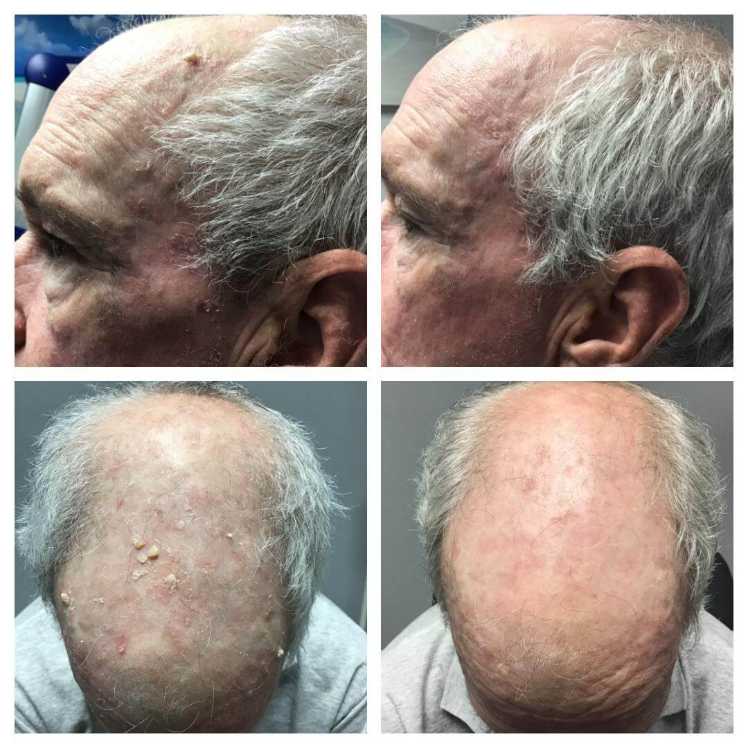 Before and After photo Dynamic Therapy with Ameluz after 1 treatment